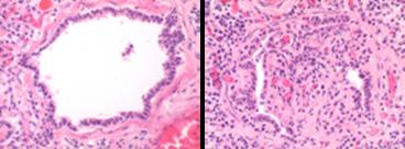 L: normal bronchiole R: Bronchiolitis obliterans