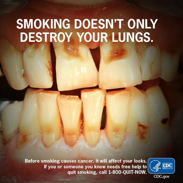teeth before and after smoking wwwimgkidcom the