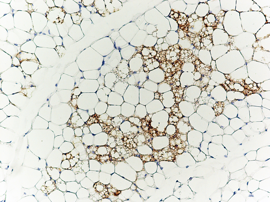 Caption: Brown fat cells (stained brown with antibodies against the brown fat-specific protein Ucp1) nestled in amongst white fat cells.Credit: Patric