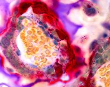 Osteoclast cells.