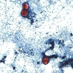 cyclospora picture