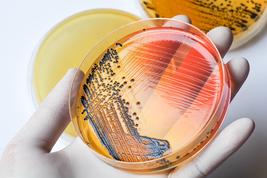 Salmonella bacteria on petri dish