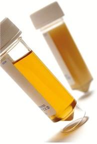 Urine BM