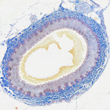 Cross-section of human artery