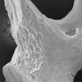 Trabecular organoid