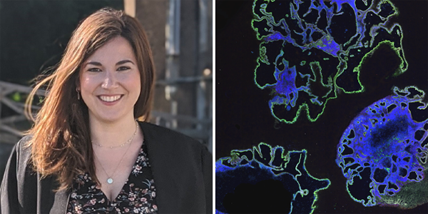 Side-by-side images of 3Rs Prize winner Dr Laura Pellegrini and cerebral organoids