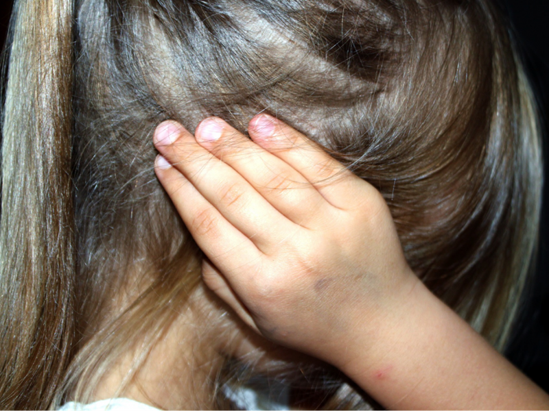 Little girl hides her face with a bruised hand