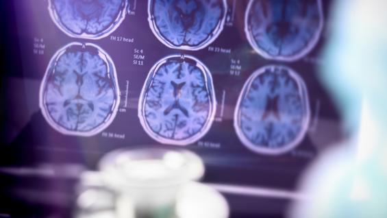 alzheimer's brain stock photo