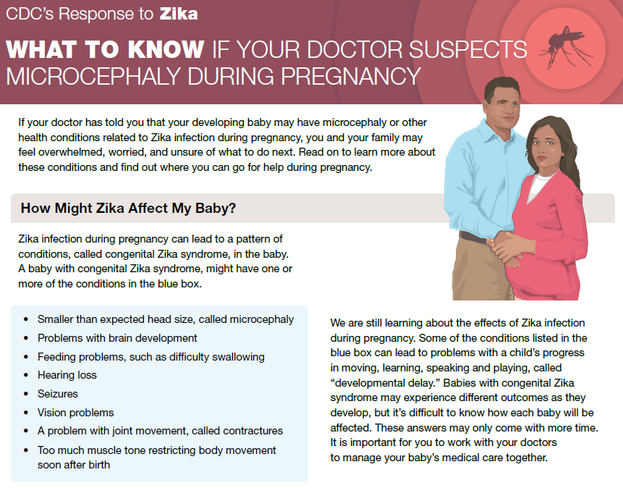 what to know if your doctor suspects microcephaly during pregnancy