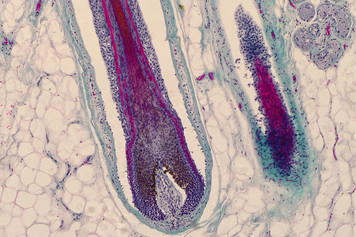 Hair follicle in human skin