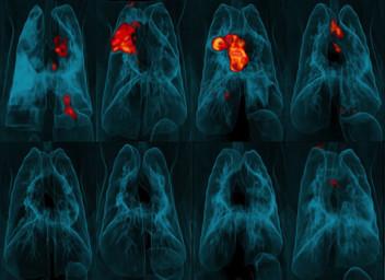 PET-CT lung scans