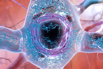 Neuron with tau tangles