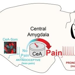 pain amygdala yarimar carrasquillo