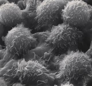 Hairy cell leukemia cell (Dept. of Energy)