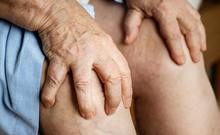 A senior woman suffering from knee pain