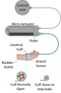 Smart Artificial Urinary Sphincter graphic