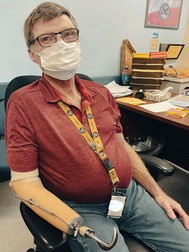 Man with prosthetic arm and hand at his desk